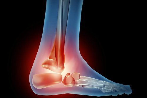 Ankle foot pain with a skeleton of the walking body part with bones in red where there is inflammation of the side view joint that has an orthopedic joint injury caused by bad shoes or running accident.
